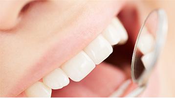 Bilan bucco-dentaire